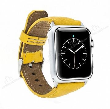 Burkley Apple Watch Sarı Gerçek Deri Kordon (42 mm)