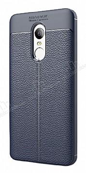 Dafoni Liquid Shield Premium Xiaomi Redmi 5 Lacivert Silikon Kılıf