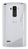 LG G4 Stylus Desenli �effaf Silikon K�l�f