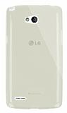 Dafoni Aircraft LG L80 Ultra İnce Şeffaf Gold Silikon Kılıf