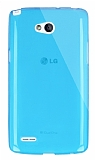 Dafoni Aircraft LG L80 Ultra İnce Şeffaf Mavi Silikon Kılıf