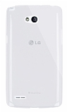 Dafoni Aircraft LG L80 Ultra İnce Şeffaf Silikon Kılıf