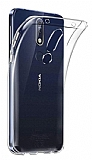 Dafoni Aircraft Nokia 5.1 Plus Ultra İnce Şeffaf Silikon Kılıf