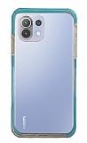 Eiroo Color Fit Xiaomi Mi 11 Lite Kamera Korumalı Mavi Silikon Kılıf