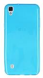 LG X Style Ultra İnce Şeffaf Mavi Silikon Kılıf