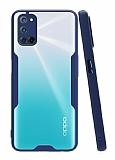 Eiroo Painted Oppo A72 Lacivert Silikon Kılıf
