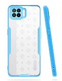 Eiroo Painted Oppo A73 Kamera Korumalı Mavi Kılıf