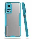 Eiroo Painted Xiaomi Mi 10T / Mi 10T Pro Kamera Korumalı Mavi Kılıf