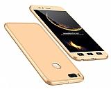 Eiroo Protect Fit Xiaomi Mi 5X / Mi A1 360 Derece Koruma Gold Rubber Kılıf