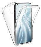 Eiroo Protection Xiaomi Mi 11 Lite 360 Derece Koruma Şeffaf Silikon Kılıf