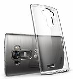 LG G4 Tam Kenar Koruma Şeffaf Rubber Kılıf