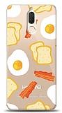 Huawei Mate 10 Lite Breakfast Resimli Kılıf