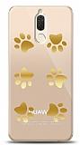 Huawei Mate 10 Lite Gold Patiler Kılıf