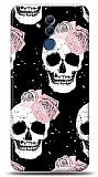 Huawei Mate 20 Lite Cranium Rose Kılıf