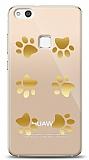 Huawei P10 Lite Gold Patiler Kılıf