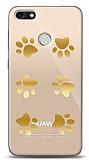 Huawei P9 Lite Mini Gold Patiler Kılıf