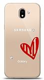 Samsung Galaxy J5 Pro 2017 3 Taş Love Kılıf
