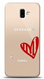 Samsung Galaxy J6 Plus 3 Taş Love Kılıf