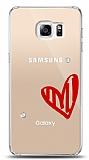 Samsung Galaxy S6 Edge Plus 3 Taş Love Kılıf