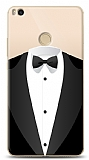 Xiaomi Mi Max 2 Suit Resimli Kılıf
