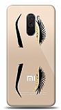 Xiaomi Pocophone F1 Eyes Resimli Kılıf