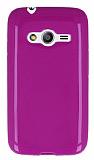 Samsung Galaxy Ace 4 Parlak Mor Silikon Kılıf