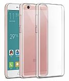 Xiaomi Mi 5c Şeffaf Kristal Kılıf