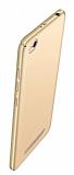 Xiaomi Redmi 4A Tam Kenar Koruma Gold Rubber Kılıf