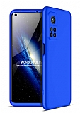 Zore GKK Ays Xiaomi Mi 10T Pro 5G 360 Derece Koruma Mavi Rubber Kılıf