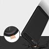 Eiroo Carbon Shield Asus Zenfone 4 Max ZC554KL Ultra Koruma Lacivert Kılıf - Resim 4