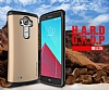 Verus Thor Series Hard Drop LG G4 Light Silver Kılıf - Resim: 3