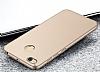Xiaomi Redmi 4X Tam Kenar Koruma Gold Rubber Kılıf - Resim 4